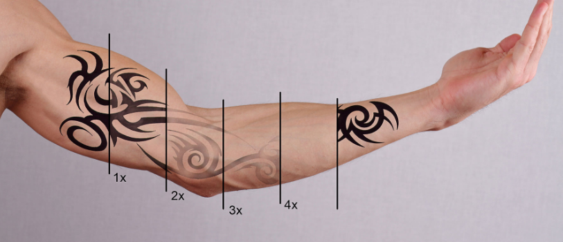 Laser Tattoo Removal Gold Coast